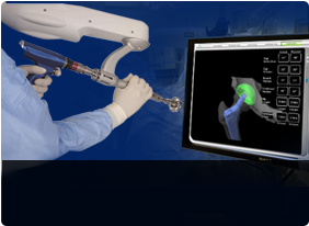 Robotic Assisted Hip & Knee Surgery/Makoplasty